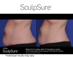 before and after sculpsure procedure